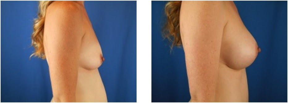Breast Augmentation Before and After Photo Set 1