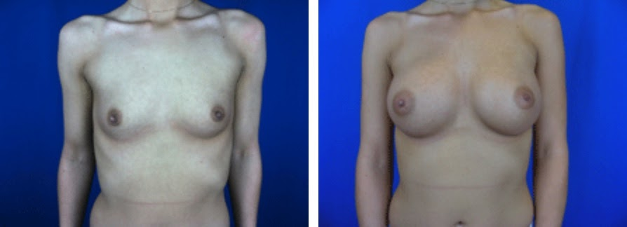 Breast Augmentation Before and After Photo Set 3