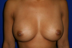 Breast Augmentation (after)