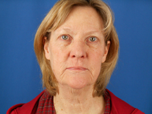 Before & After Facelift   Emmett Plastic Surgery   Lone Tree, CO