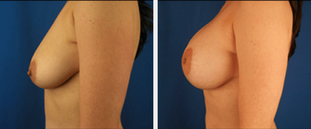 Breast Lift with Augmentation | Emmett Plastic Surgery | Lone Tree, CO