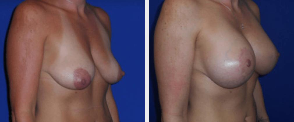 Breast Lift with Augmentation | Emmett Plastic Surgery | Lone Tree, CO