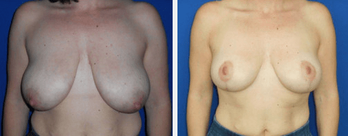 Breast Lift Results Denver, CO