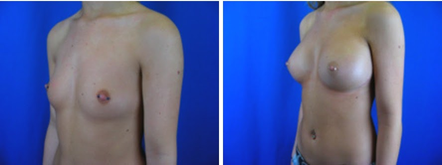 Breast Augmentation Before and After Photo Set 2