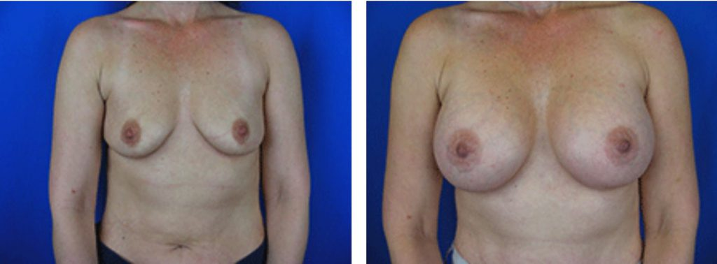 Breast Augmentation Before and After Photo Set 4